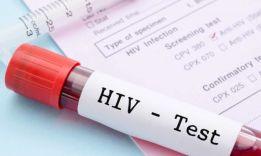 Как жить с ВИЧ?