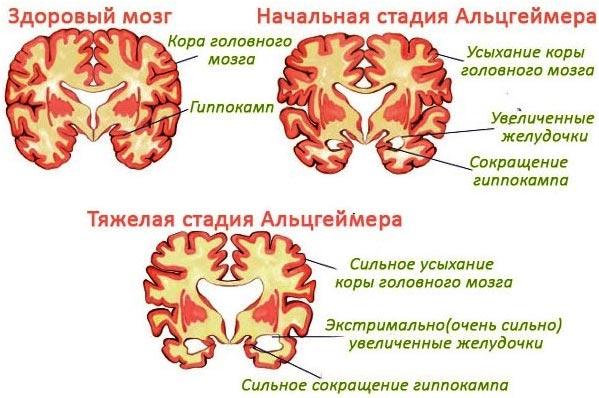 stadii-razvitija-bolezni