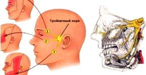 kak-lechit-trojnichnyj-nerv